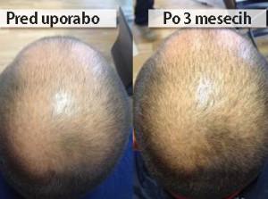 serum-izpadanje-las